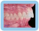 Deep Bite - Orthodontic