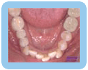 Lower Crowding - Orthodontic