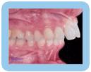 Over Bite - Orthodontic
