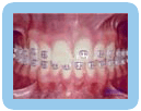 Placement of Brackets - Orthodontic