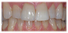 Veneers - Stained Teeth after