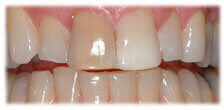 Veneers - Stained Teeth before