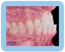 Under Bite - Orthodontic